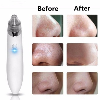 1PCS Cleaner Machine + 4PCS Suction head Electric Black headCleanerAcne Remover Facial Pore Blemish Cleanser Tool Kit White - intl